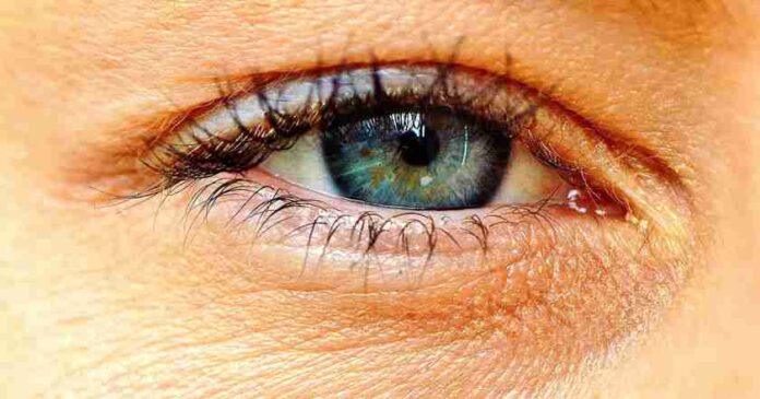 diabetes affecting your eyes